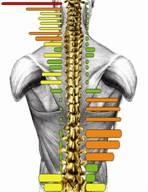 migraine-12