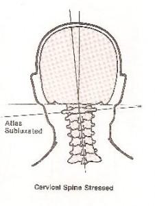 migraine-7